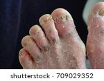 contact dermatitis  fungal