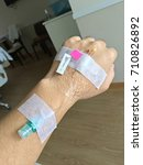 iv solution in patient male... | Shutterstock . vector #710826892