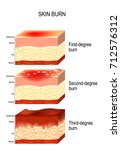 skin burn. three degrees of... | Shutterstock .eps vector #712576312