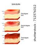 skin burn. three degrees of... | Shutterstock .eps vector #712576312