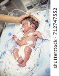 Small photo of Newborn premature baby in the NICU intensive care