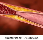 Blood Clot, Plaque in Artery Restricting Blood Flow - stock photo