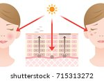 diagram of turnover and skin... | Shutterstock .eps vector #715313272
