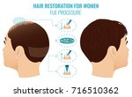 female hair loss treatment with ... | Shutterstock . vector #716510362