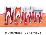 stages of root canal treatment... | Shutterstock . vector #717174625