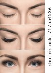 Small photo of Eyelash removal procedure before and after close up. Beautiful Woman with long lashes in a beauty salon. Eyelash extension.