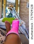 woman with broken leg broken... | Shutterstock . vector #717929128