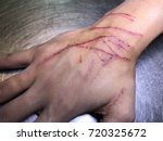 the skin condition after cat... | Shutterstock . vector #720325672