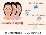 causes of aging  vector... | Shutterstock .eps vector #720404485