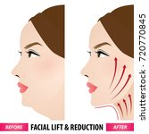 facial lift and reduction... | Shutterstock .eps vector #720770845