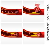 artery section with cholesterol ... | Shutterstock .eps vector #722467486