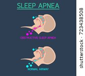 sleep apnea vector icon... | Shutterstock .eps vector #723438508