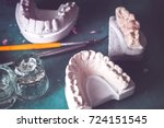 dental prosthesis  artificial... | Shutterstock . vector #724151545