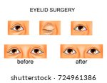 vector illustration of eyelid... | Shutterstock .eps vector #724961386
