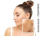 dark spots  freckles... | Shutterstock . vector #726044842
