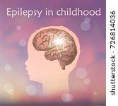 epilepsy in infants  childhood. ... | Shutterstock .eps vector #726814036