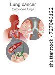 the lung cancer is a malignant... | Shutterstock .eps vector #727043122