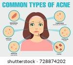different type of acne. vector... | Shutterstock .eps vector #728874202