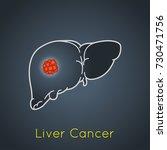 liver cancer vector logo icon... | Shutterstock .eps vector #730471756