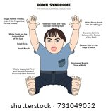 down syndrome physical... | Shutterstock .eps vector #731049052