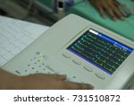 woman holding electrocardiogram ...   Shutterstock . vector #731510872