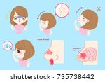 woman with nose bleed on the... | Shutterstock .eps vector #735738442