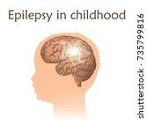 epilepsy in infants  childhood. ... | Shutterstock .eps vector #735799816