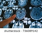 pointing on magnetic resonance...   Shutterstock . vector #736089142