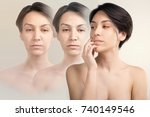 skin lifting and old skin... | Shutterstock . vector #740149546