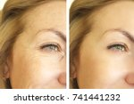 eye wrinkles before and after | Shutterstock . vector #741441232
