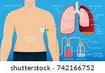 symptom spontaneous iatrogenic... | Shutterstock .eps vector #742166752