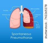 symptom spontaneous iatrogenic... | Shutterstock .eps vector #742265278