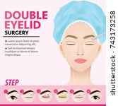double eyelid surgery steps...   Shutterstock .eps vector #743173258