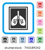 lungs fluorography icon. flat...