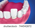 dental veneers  porcelain...   Shutterstock . vector #744542872
