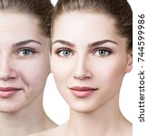 woman's face before and after... | Shutterstock . vector #744599986