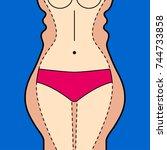 liposuction. liposuction hips ... | Shutterstock .eps vector #744733858
