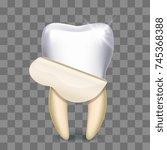 tooth veneer whitening dental... | Shutterstock .eps vector #745368388