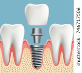 human teeth and dental implant... | Shutterstock .eps vector #746717506