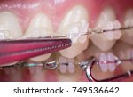 dentist treating teeth with... | Shutterstock . vector #749536642