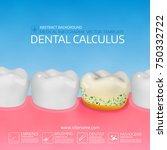 dental calculus with bacteria.... | Shutterstock .eps vector #750332722