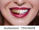 woman teeth before and after... | Shutterstock . vector #754146658