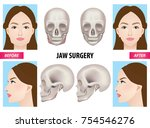 jaw surgery vector illustration | Shutterstock .eps vector #754546276