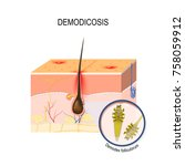 demodicosis. face mites.... | Shutterstock .eps vector #758059912
