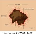 signs of malignant melanomas...   Shutterstock .eps vector #758919622