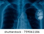 xray pacemaker cell  | Shutterstock . vector #759061186