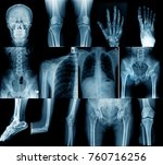 x ray collection all main joint | Shutterstock . vector #760716256
