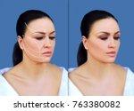 thread lift  markup | Shutterstock . vector #763380082