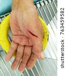 Small photo of laceration wound at Left hand, emergency room