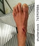 Small photo of laceration wound at left foot, emergency room